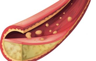 Tidak Semua Kolesterol itu Jahat